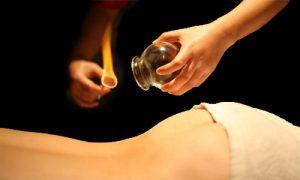 De foto toont een cupping behandeling als onderdeel van de traditionele Chinese geneeskunde (TCM)